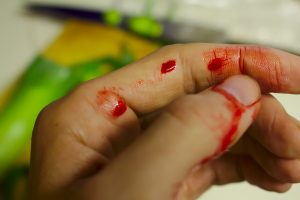 accident bloody finger